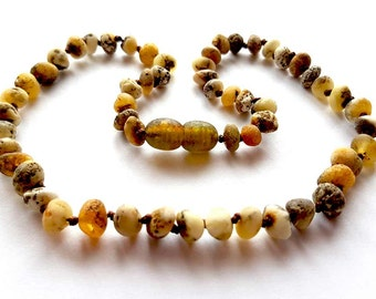 NATURAL BALTIC AMBER Raw Unpolished Maximum Effective Baby Teething Necklace