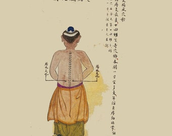 antique chinese traditional medecine acupuncture moxa chart intestinal points digital download