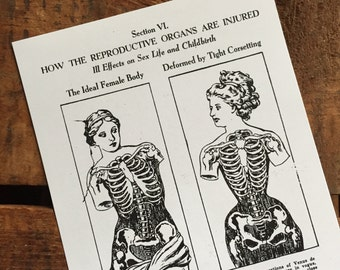 Reproduction of Vintage Ladies & Skeletons Print - Anatomy, Human, Science, Health