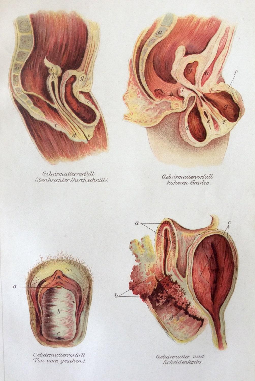Jahrgang 1907 Gebärmutter deutsche Medizin Anatomie Diagramm