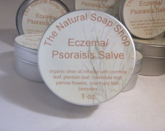 Get Relief From Eczema & Psoriasis with this Healing Salve Natural  Organic