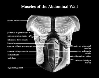 Muscles of the Abdominal Wall- Art Print - Poster - Medical -  Doctors Office - Teaching Hospital - Anatomy Art - Med Student Art