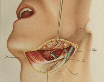 Antique 1897 Viennese Medical Bookplate Neck Throat SURGERY  Muscles Chromolithograph Medical Diagram