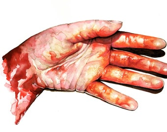 A4 or A3 Print Bloody Severed Hand Morgue Pathology Anatomy Anatomical Medical Death Gothic Horror Blood Gore