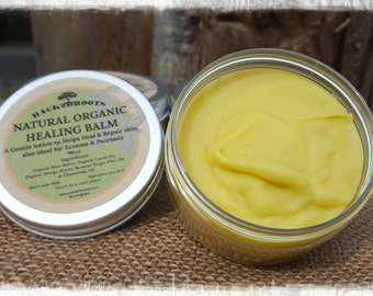 Natural Organic Healing Balm / Eczema / Psoriasis / Baby & adults lotion
