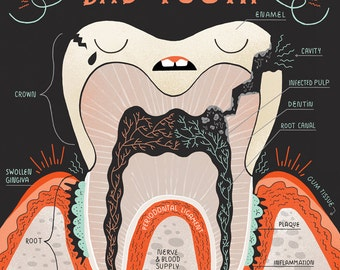 Anatomy of a Bad Tooth:  Art print and poster