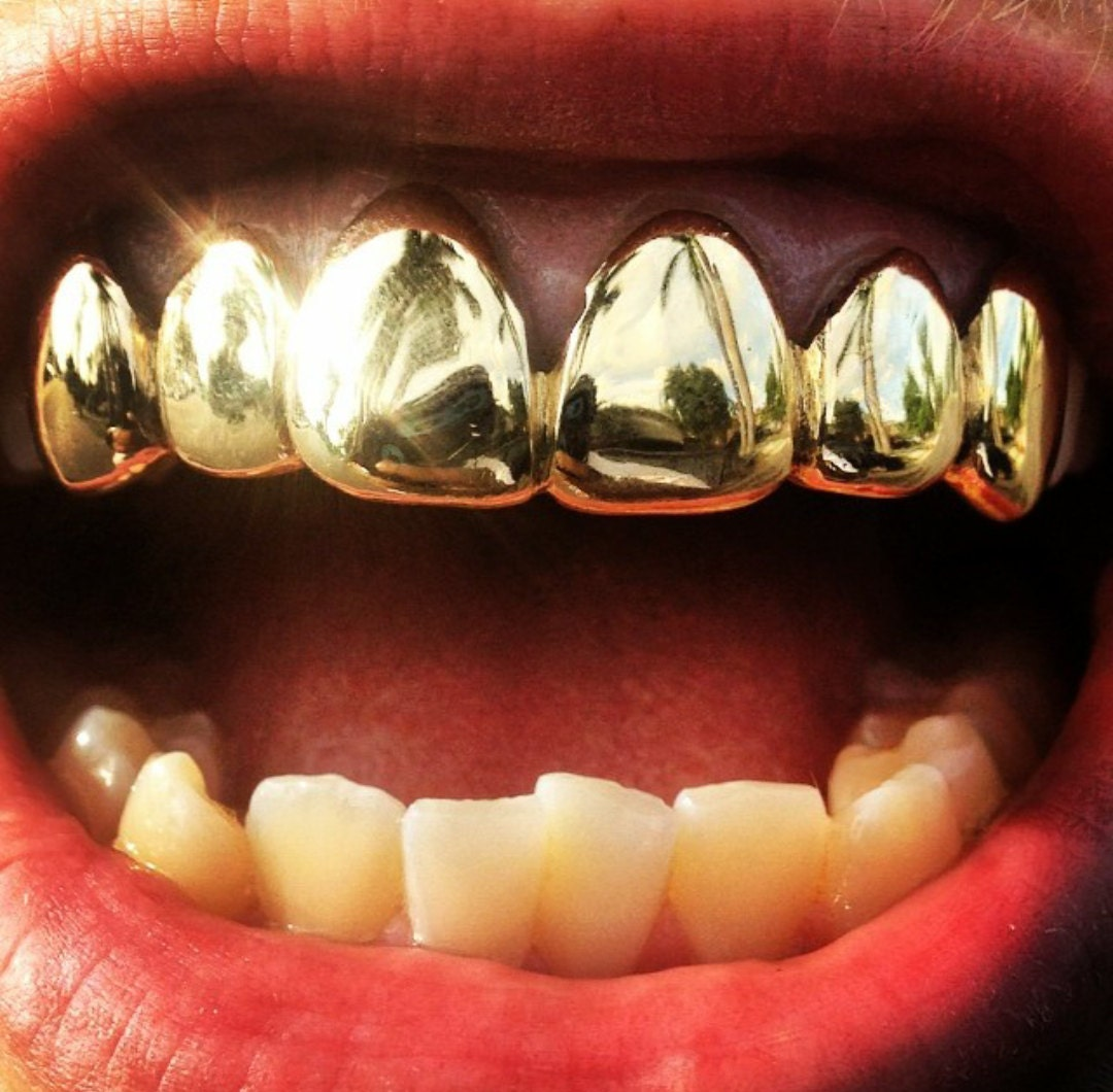 White Gold Grillz With Princess Cuts