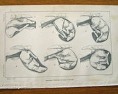 Abnormal positions for Calf in Utero  print lithograph  veterinary medicine.  Early 20th century.