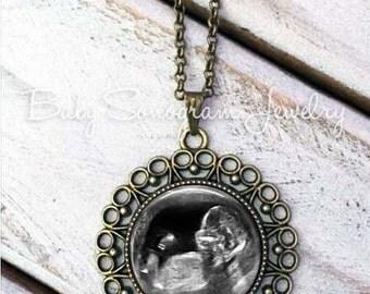Ultrasound Necklace, Sonogram Jewelry, Sonogram Necklace, Sonogram Pendant, Baby Sonogram gift