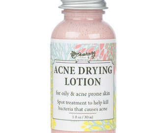 Acne Drying Lotion, For Acne and Oily Skin Types, With Salicyclic Acid, Best Acne Lotion, Rid Pimples, Rid Blackheads