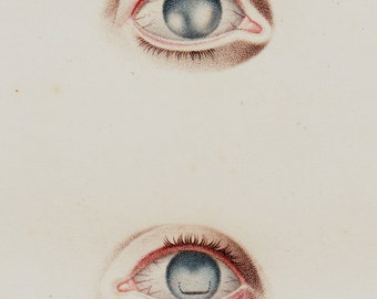 1818 Antique EYES print, fine anatomy lithograph, eyeball, ocular globe surgery, original antique 198 years old