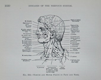 Nerves and motor points in upper extremity.Anatomy print. Old book plate,1911.Antique  illustration. 104 years lithograph. 9'4 x 6'2 inches.