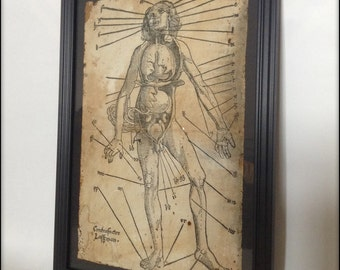 Hand aged reproduction old medical illustration in frame.