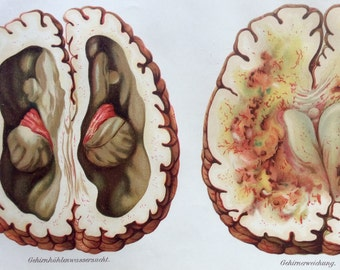 Vintage 1907 German BRAIN DISEASE Medical Chromolithograph Anatomy Diagram Bookplate Dissection