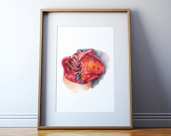 Head and Neck Dissection Watercolor Print - ENT Surgery Art Print
