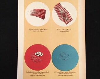 1916 Medical Print - The Cholera Germ, Original 7x10 Print, Antique Color Lithograph