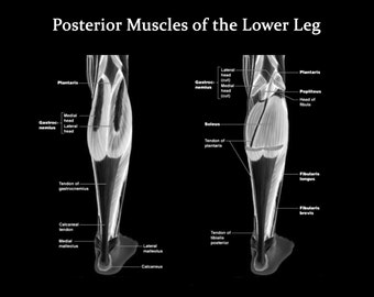 Muscles of the Lower Leg Posterior View - Art Print - Poster - Medical Office - Teaching Hospital - Anatomy Art - Med Student Art