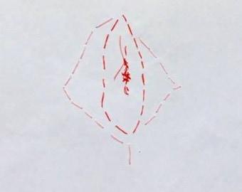 Vulva Stitching