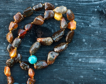 """Baltic Amber Necklace Georgeous Rustic Chunky Earthy Nuggets Beads Genuine American Kingman Turquoise Round Bead OOAK 18.5"""""""
