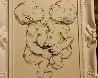 ORIGINAL Framed Conjoined Twins Siamese Illustration Macabre Morgue Pathology Anatomy Anatomical Medical Horror Baby Mememto Mori Babies
