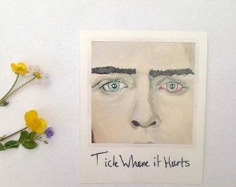 Tick Where it Hurts Polaroid Art Print