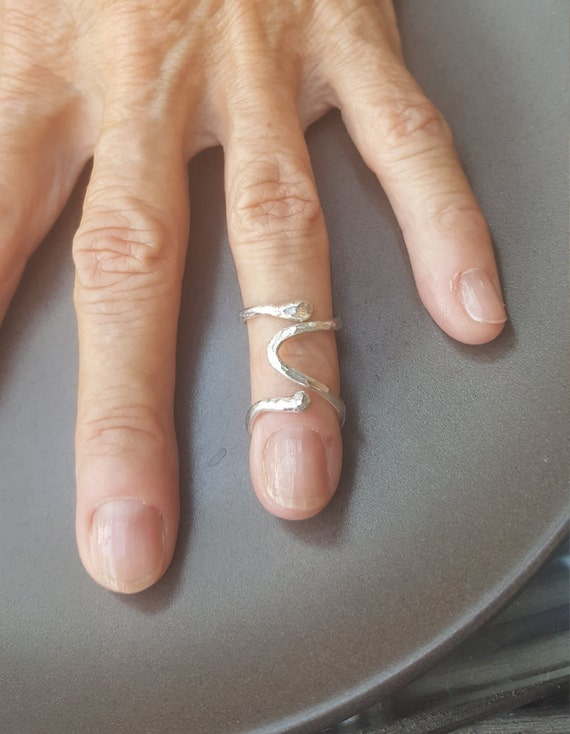 What Are Ring Splints