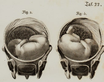 1840 Antique FETUS print, fine anatomy engraving of parturition, obstetrics for midwives