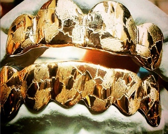 Custom 6 Piece Top or Bottom Silver w/ Gold Plating Nugget Style