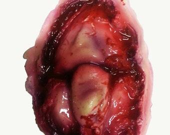 Zombie knee prosthetic
