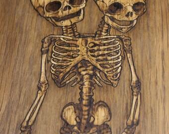 Conjoined twins skeleton Drawing on wood Medical illustration Original art