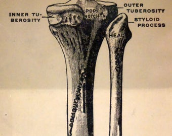 Leg Bone Medical Vintage Print In Frame