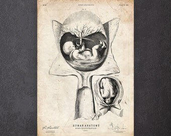 Medical curiosity print Fetus print Antique anatomy plate Gynecology gift CA092