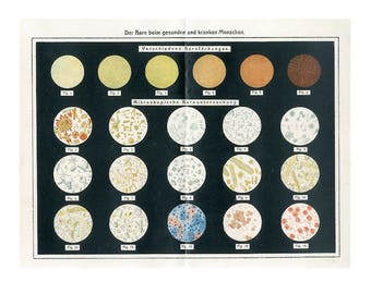 c. 1900 - URINE ANALYSIS lithograph - original antique print - medical science- urology - urologist urinalysis - medicine laboratory test