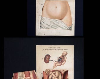 Vintage 1909 French Medical Pre Natal Anatomy Diagram Fold Out Chromolithograph Bookplate Human Body Pregnant Woman Dissection Model