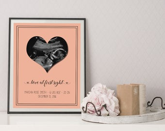 Ultrasound Picture - Sonogram Picture - Ultrasound Print - Sonogram Print - Baby Shower Gift - Baby Ultrasound - Baby Sonogram - Printable