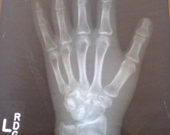 X-ray Human Left Hand