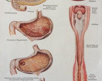 Vintage 1920s German Medical Anatomy Organs GASTROINTESTINAL DISEASES Diagram Bookplate