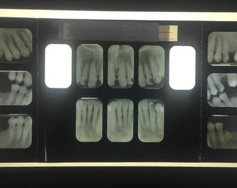 Vintage Full Mouth Series X-Rays