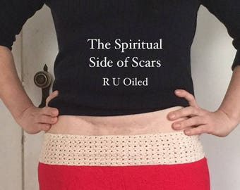 INSTANT ACCESS to ONLINE Class The Spiritual Side of Scars- My Story of Healing My C Section Cut 7 Times