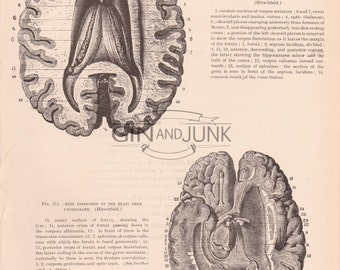 Antique Anatomy Print - Lateral Ventricle, Human Brain Print from 1898