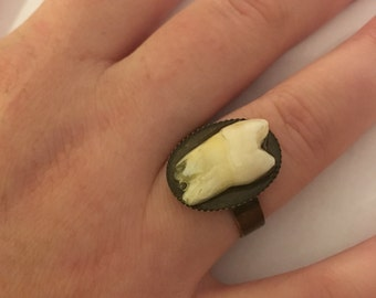 Imperfection Sale - Genuine Human Incisor Tooth Ring . Antiqued Adjustable Brass