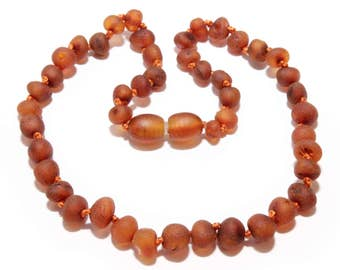 Genuine Raw Baltic Amber Beads Baby Teething Necklace Cognac Color Unpolished