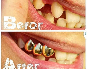 how to fix rotting teeth at home