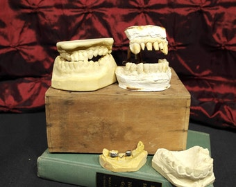 Lot of Vintage Dental Impressions one with Dental Articulator Snaggle Tooth Teeth Oddities Dentist Gag Gift Dental Study Crafts