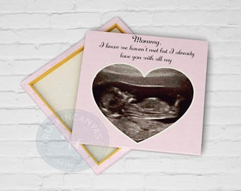 Expecting Mom Gift, Mother's Day Gift for Expecting Mommy, Expecting Parents Gifts, Sonogram Canvas, RockinCanvas