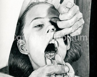 Le dentiste. Fine art print of an original drawing. Signed by the artist.