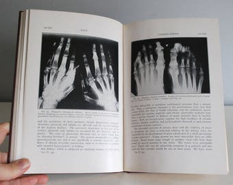 Gout Medical Book, 1940s Medical Textbook, Clinical Medical Texts, John H. Talbott, X-Rays and Photographs, Vintage Library Decor