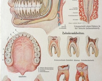 Vintage 1920s German Anatomy FACE Dissection TOOTH DISEASE Teeth Oral Medical Diagram Bookplate