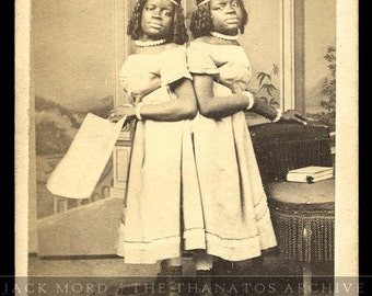 TWO-HEADED GIRL // Rare Antique Image of African American Conjoined Twins / Former Slaves and Sideshow Performers
