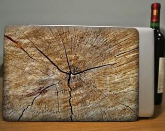 Wood Texture Case Macbook Case Macbook Hard Case Macbook Cover Macbook Pro Case Macbook Air Case Macbook Shell Macbook Skin
